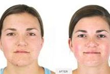 Before & After Skincare Treatments / Pair your at-home skincare routine with professional treatments for powerful results.