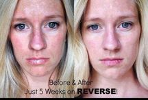 Believe It! REAL Before + Afters ! / This shiz works. 60day empty bottle full $$$ back guarantee. Zero Risk. Guaranteed Results.   Rodan+Fields Dermatologists  Skinpact.myrandf.com