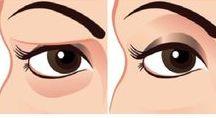 Pálpebras Caídas, Drooping Eyelids, Ptosis