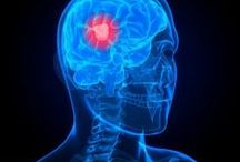 "Glioblastoma - Racing Against Time / My husband has been diagnosed with glioblastoma. This is my collection of links. As this list gets longer, use your browser's ""find"" function to find specific keywords you're looking for regarding GBM. (I.e. ""sugar,"" ""intravenous vitamin c,"" ""polio,"" etc.)"