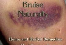 Bruises - Essential Oils and Aromatherapy / Dilute essential oils 4 drops per tsp of carrier oil and apply to affected area. Recommendations for this ailment are derived from a combination of traditional knowledge, scientific studies, a variety of essential oil reference books and anecdotal evidence. Discontinue use if any irritation develops. Seek professional health care provider if the symptoms or conditions persist. These statements have not been evaluated by the FDA.