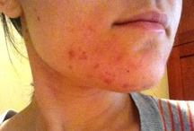 Health, Home Remedy, Skin Care / Health, Home Remedies, Skin Care. Stuff for the Body / by Jennifer Rutherford