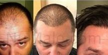 Hair Restoration Options / Our minimally invasive treatments provide natural-looking results with the shortest recovery time when compared to traditional methods for restoring hair. We use industry-leading technology and innovative techniques, which give our clients the best results.