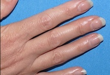 Amazing Success Stories using TIPS Nail Conditioner / Participants in the Ultimate Bare Naked Nail Challenge send in their photos and progress reports over a 10 week period.