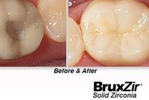 BruxZir® - Case Studies  / BruxZir® Solid Zirconia is a full-contour solid zirconia crown or bridge restoration with no porcelain overlay. More brawn than beauty, you'll be impressed by the esthetics of BruxZir when prescribed instead of posterior metal occlusal PFMs and full-cast metal restorations. Virtually chip-proof, BruxZir Solid Zirconia crowns & bridges are the ideal restoration for bruxers and grinders, implant restorations and areas with limited occlusal space.