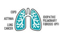 Respiratory Visualized / Chronic Obstructive Pulmonary Disease #COPD is to become the third leading cause of death globally by 2030 – but do you even know what it is? See the facts for yourself... Idiopathic pulmonary fibrosis (IPF) is a chronic, progressive form of interstitial lung disease.