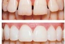Porcelain Veneers / There are various options to improve your smile and one of the techniques includes the use of porcelain veneers. There are newer ways of doing veneers called Lumineers.