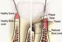Gum Diseases / At Smile Concepts gum disease, gingivitis, periodontal disease and periodontists are identified primarily and treated with the latest advances in conservative treatment and lasers.