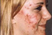 Acne cures / by Sheila Phillips