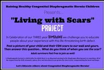"""Living with Scars"" project / Share your child's scar with the world. Educate about congenital diaphragmatic hernias A Diaphragmatic hernia is a birth defect in which there is an abnormal opening in the diaphragm allowing part or sometimes all of the organs from the belly (stomach, spleen, liver and intestines) to go up into the chest cavity, compromising the heart and lungs. / by Terri Helmick"