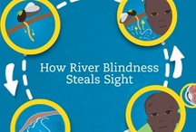 River Blindness / Onchocerciasis, commonly known as River Blindness, is one of the most agonizing and painful conditions that you can imagine, and is caused by a parasite transmitted by flies. If detected early enough, blindness can be prevented, but left untreated, it causes irreversible damage to the optic nerve and cornea.