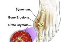 Gout Information / This board includes information about Gout recipes, diets, symptoms, prevention, and etc.