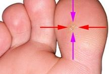 Plantar Wart Information / Plantar Warts or any other kind of Wart need to be treated and removed.