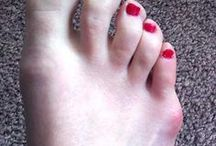 Bunion Information / A bunion (also referred to as hallux valgus or hallux abducto valgus) is often described as a bump on the side of the big toe.