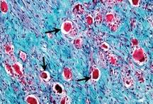 Science - Virology and Pathology / Disease, Virology and Pathology images