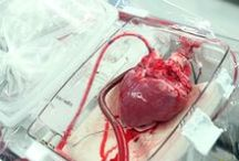 "New Heart in 2016!! / Clinical trial aka: ""heart in a box"""
