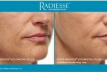 Radiesse Dermal Filler / RADIESSE® Volumizing Filler: It Just Gets Better