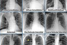 Pneumology Tips [medical training] / Pneumology - Allergology