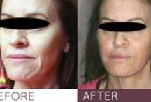 Before & After - Outline Aesthetic & Laser Clinic Droitwich / Before & After photos of our procedures
