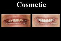 Before and After cases / #Cosmetic #Dentistry #Dentist #Doctors #Invisalign #Implant #Veneers #Teeth #Healthy #Smile #Makeover #Fresno #Clovis For more information please visit our website: www.fresnosmilemakeovers.com