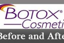 Botox Before and After Photos / These pictures are of before and after #botox treatments.