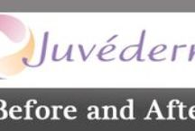 Juvederm Before and After Photos / These Photos are of patients before and after #Juvederm treatment.