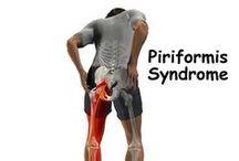 Piriformis-syndrooma! / piriformis = lonkkanivelen ulkokiertäjä ja ikävä vaiva kun se kiristyy. Tässä hieronta ja venyttelyohjeita