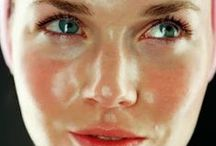 Acne/face