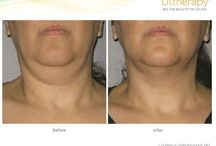 Ultherapy / Noninvasive Facelift and Necklift.  Most effect skin tightening procedure.
