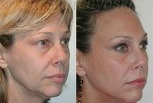 SlupLift Before & After / Before and after pictures of our wonderful patients.