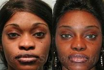 African-American & Ethnic Rhinoplasty Before & After / The African-American nose generally lacks substantial tip support and broad with wide nostrils and the dorsum is typically flat or almost not apparent. The tip is the major focal point. Generally the skin is thicker and this also determines the degree of result. - See more at: http://www.africanamericanrhinoplasty.com/photo-gallery/category/revision-rhinoplasty.