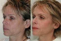 Botox, Juvederm, Radiesse, Restylane & Sculptra Before & After / Learn more about these non-surgical cosmetic interventions at www.facechange.org