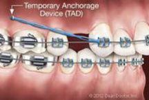Appliances / Appliances that we use at Hatcher Orthodontics