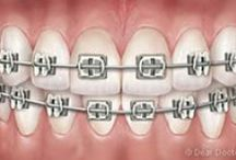 Types of Braces / Braces at Hatcher Orthodontics. Visit hatcherorthodontics.com