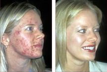Skin Disorders & Dermatology Treatment Success / Skin diseases, and before and after images of successful treatments and happy patients at Crutchfield Dermatology / by Crutchfield Dermatology