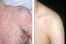 Psoriasis Before & After Treatment / Psoriasis is an itchy skin condition that appears as patches and plaques of dry, scaly skin located most commonly on the elbows, knees and scalp. Psoriasis, however, can occur anywhere. Sometimes it can be very mild, and in other cases it can be quite severe and widespread. Psoriasis can also make your fingernails and toenails rough and discolored with small pits. Fortunately, there is Crutchfield Dermatology in Eagan, MN providing care and treatment for your Psoriasis. / by Crutchfield Dermatology