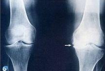 #Artrosis / La artrosis es una enfermedad inflamatoria crónica que afecta a las articulaciones, normalmente, rodillas, cadera, manos o columna vertebral. Actualmente, más de siete millones de españoles padecen esta enfermedad. Según la OMS, en 2020 será la cuarta causa de discapacidad debido al aumento de la esperanza de vida.
