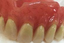 Mes Prothèses dentaire et celles des autres!!