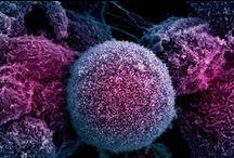 Daganatos betegségek/Cancer