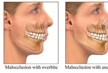 Unstable Bite / An unstable bite is called malocclusion.  Many dental problems are directly related to an unstable bite.