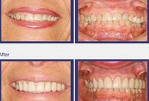 Smile Gallery / Real patient smile transformations from Concerned Dental Care.  Visit our website to see more transformations at http://www.concerneddentalcare.com