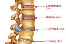 Pain / Paget's disease of bone can be very painful.