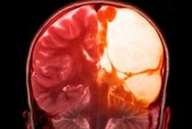 MRI Scan - Health Check