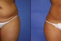 SmartLipo / Smartlipo Liposuction at Shape Cosmetic Surgery & MedSpa in Spokane, Tri Cities Wa and in Coeur d'Alene Idaho. http://www.shapespokane.com