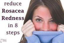 Rosacea Solutions