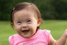 Down Syndrome / General information about Down syndrome