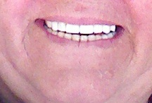full mouth restoration / Dental prosthetics treatment.