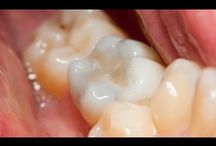 Restorative / Information on tooth restorations.