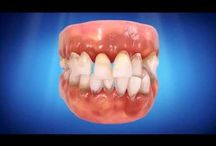 Invisalign / Information on Invisalign treatment.