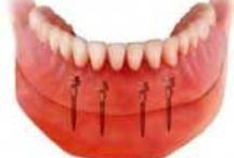 Dentures and Mini Implants